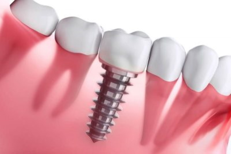 Health Conditions That Can Affect Your Suitability For Dental Implants